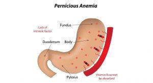 کم خونی پرنیشیوز