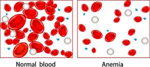 کم خونی چیست ؟